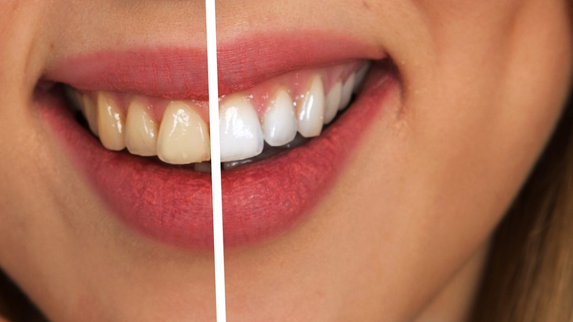 Laserowe wybielanie zębów – jak wygląda zabieg?
